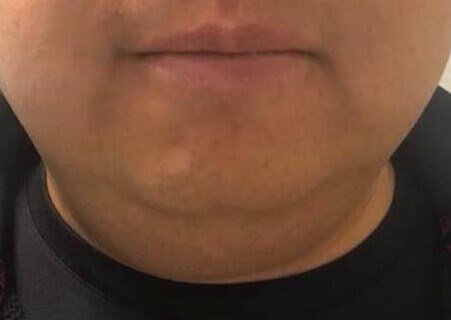 Front View of Double Chin Before