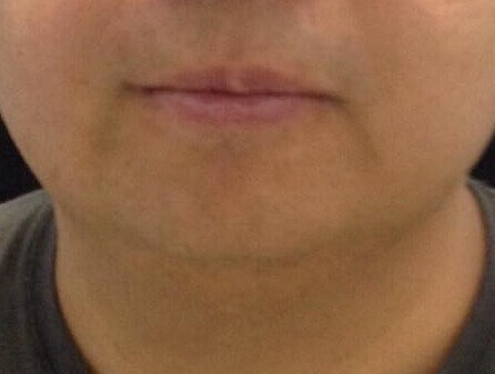 Front View of Double Chin After