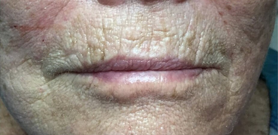 Lip Injection Patient Before
