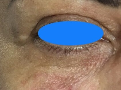 Undereye Fillers After