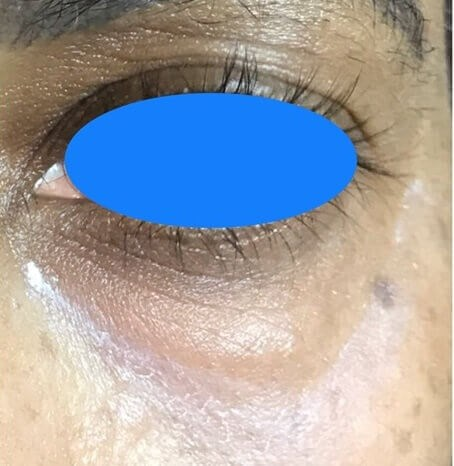 Under eye bags correction Before