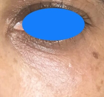 Under eye bags correction After