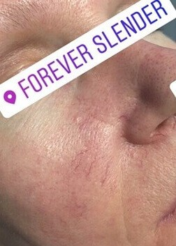 Facial Vein Removal Before