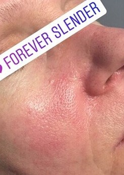 Facial Vein Removal After