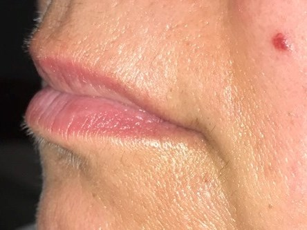 Plump lips with fillers Before