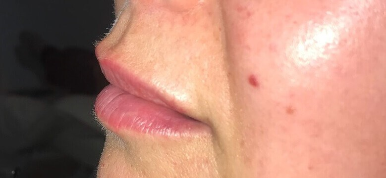 Plump lips with fillers After