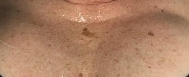 Sun damage on chest Before