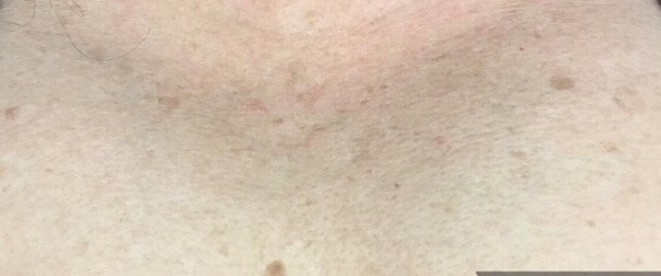 Sun damage on chest After
